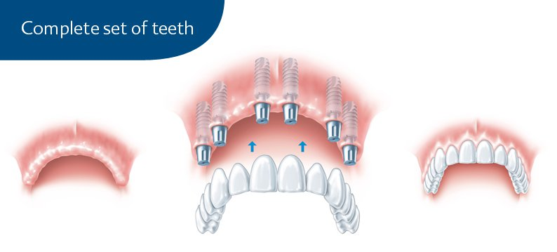 Complete set of teeth with implants graphic