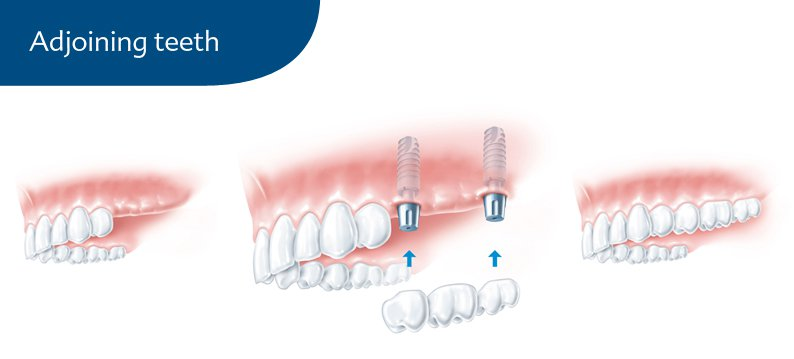 Adjoining teeth graphic