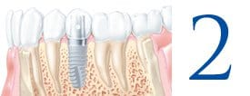 Stage 2 implant placement