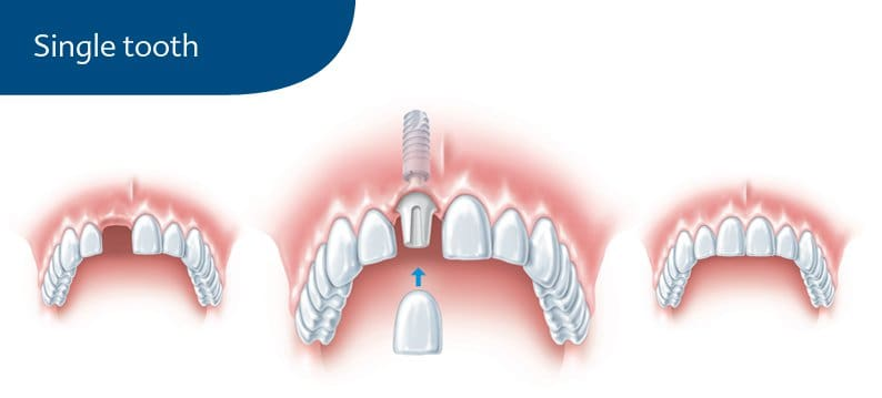 Single tooth on an implant graphic